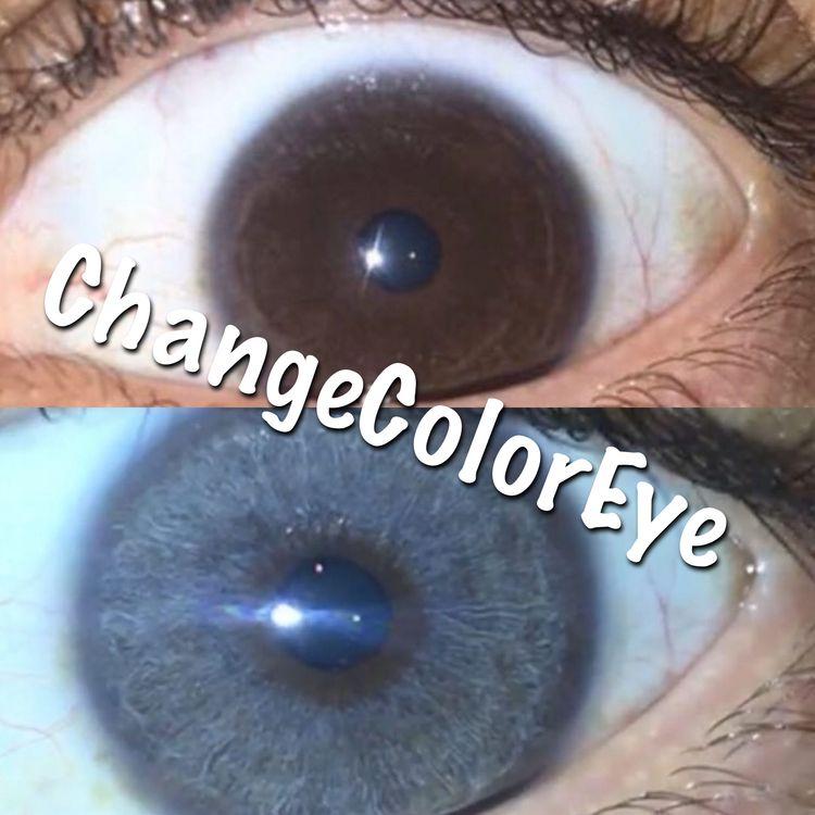 Eye Color Change Result,laser e - changeeyecolor | ello