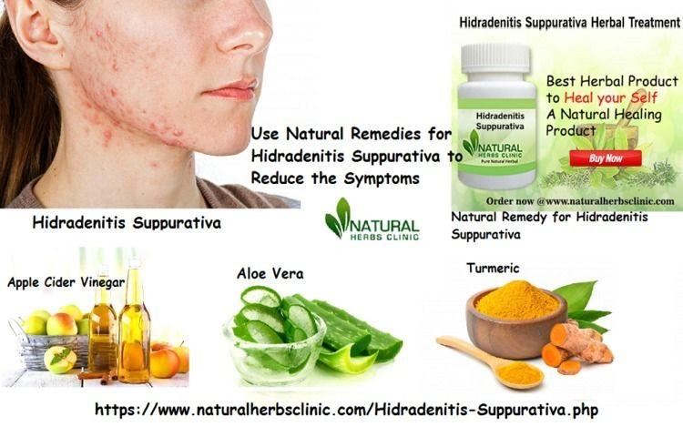 Natural Remedies Hidradenitis S - naturalherbs | ello