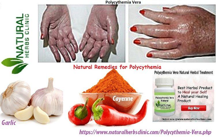 Natural Remedies Polycythemia V - naturalherbs | ello
