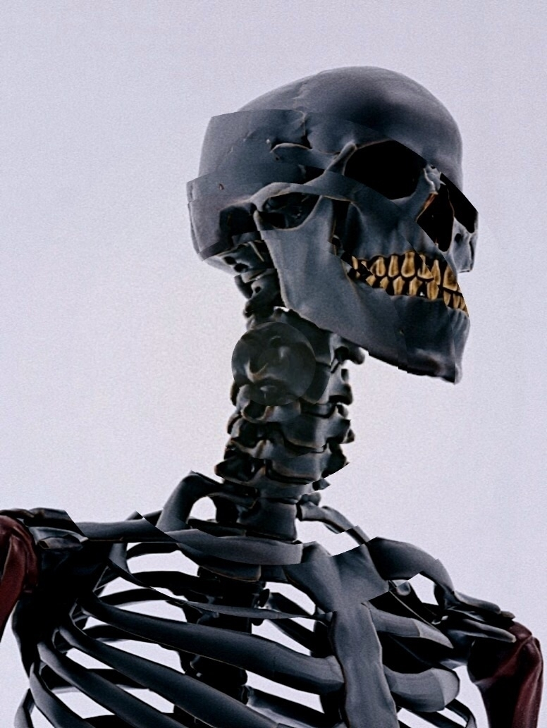 Displaced bones. nicksushkevich - nicksushkevich | ello