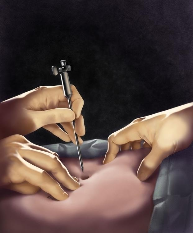 Insertion Veress Needle - medical - alexandrawbaker | ello