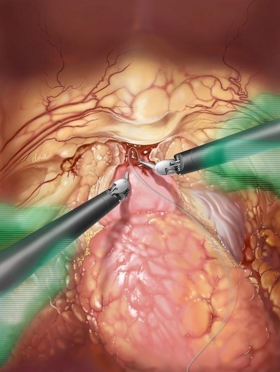 Robotic Prostatectomy - medical - alexandrawbaker | ello