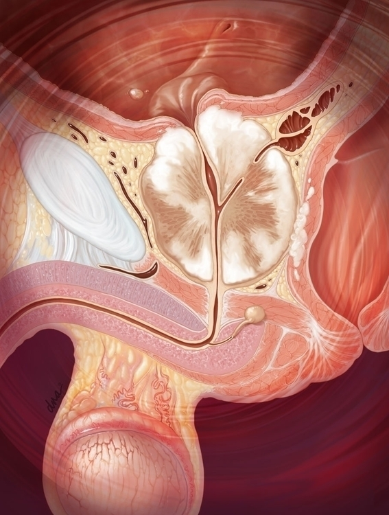 Prostate cancer - medical, illustration - alexandrawbaker | ello
