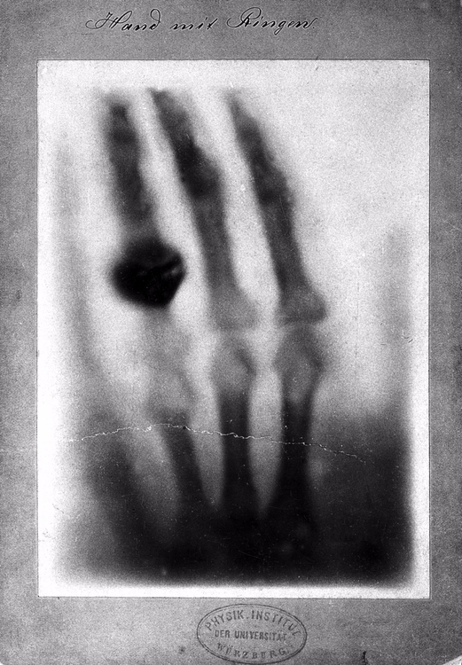 Death - XRay, röntgen, pioneer, photograph - valosalo   ello
