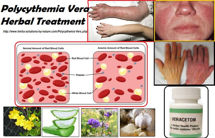 Polycythemia Vera Herbal Treatm - herbs-solutions-by-nature | ello