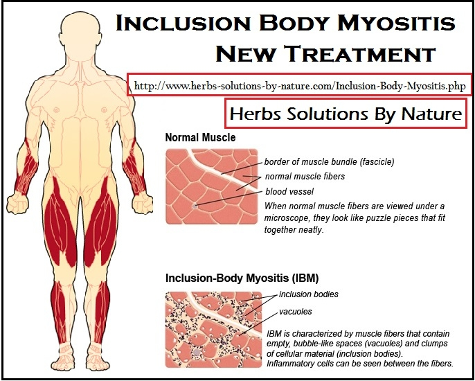 Inclusion Body Myositis Treatme - herbs-solutions-by-nature | ello