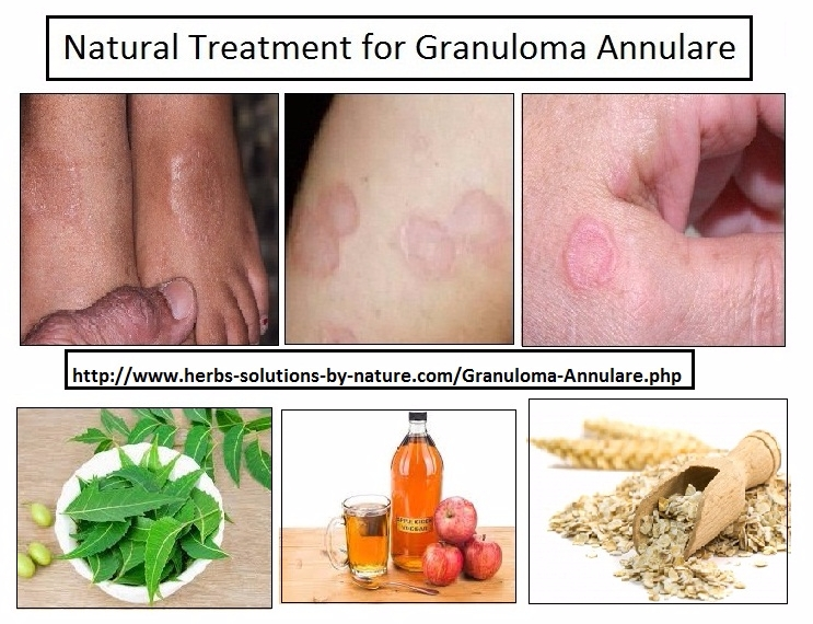 6 Effective Natural Treatment G - herbs-solutions-by-nature | ello