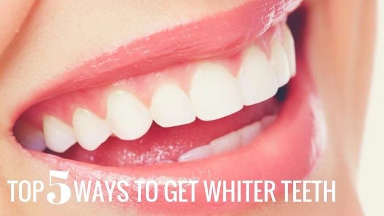 Top 5 Ways Whiter Teeth teeth s - florencedentistry   ello