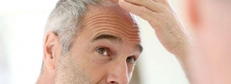Factors Affect Hair Longevity l - hairtransplantindubai   ello