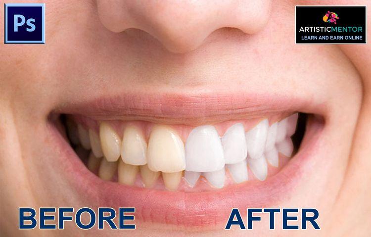 Whiten Teeth Photoshop | Tutori - artisticmentor | ello