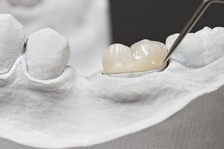 Dental inlays onlays produced s - estheticdental | ello
