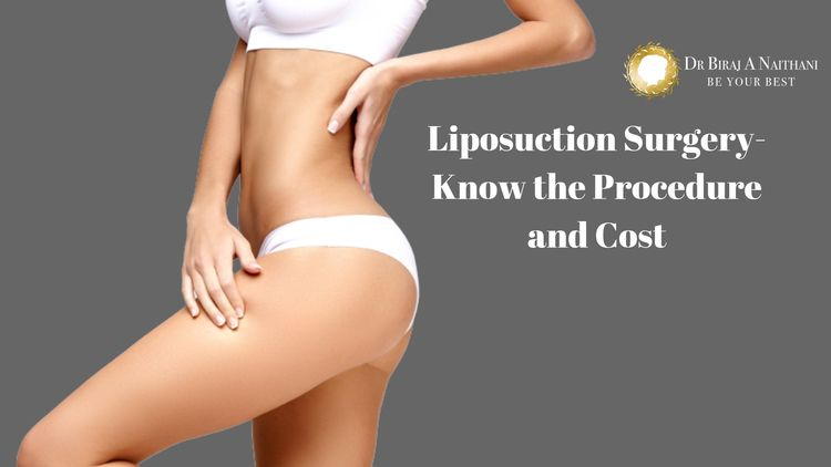 latest steps liposuction surger - drbirajnaithani | ello