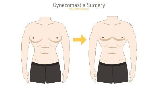 gynecomastia surgery types? Dr - drbirajnaithani | ello