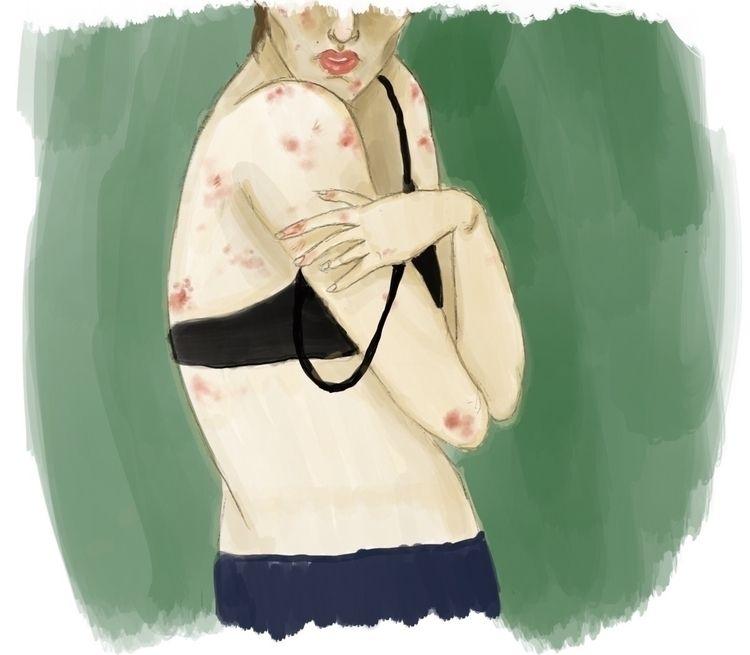 Excoriation Disorder- portrait - nicosantamorena | ello