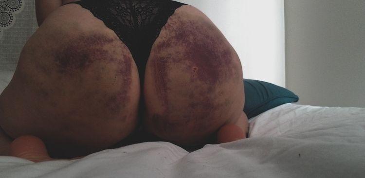 lives pain. begs hand knee. bru - princessme0248 | ello