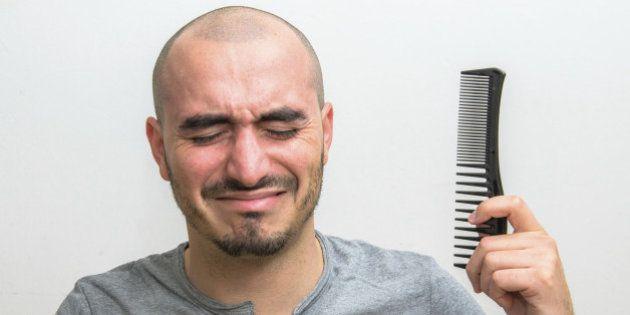 أسباب تساقط الشعر عند الرجال تش - itsmaira | ello