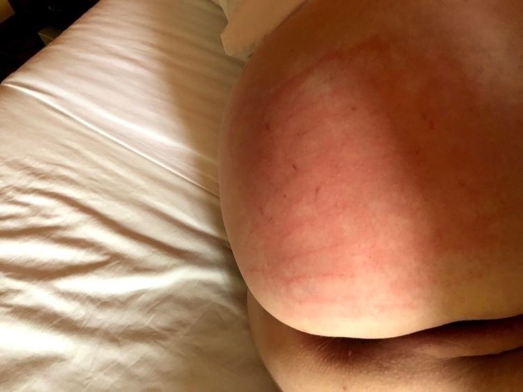Pinked - luckypair, ass, butt, spanked - luckypair | ello