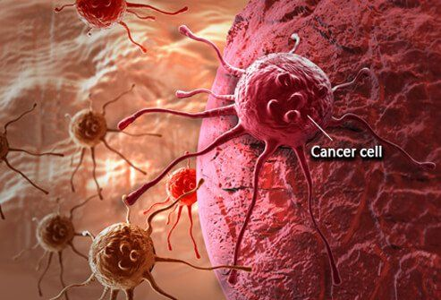 Top 10 Cancer doctor Bangalore  - poojagera125 | ello