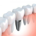Dental Implants (@dentalimplants60) Avatar