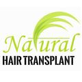 Natural Hair Transplant (@nhtclinic) Avatar