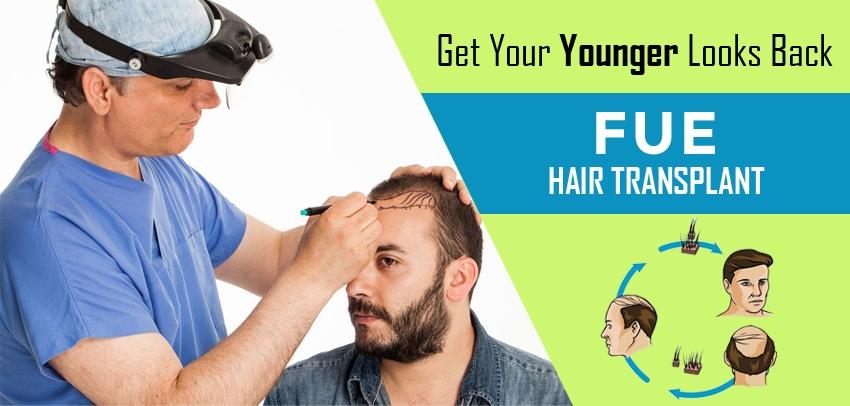 Natural Hair Transplant Delhi (@naturalhairtransplantdelhi) Cover Image
