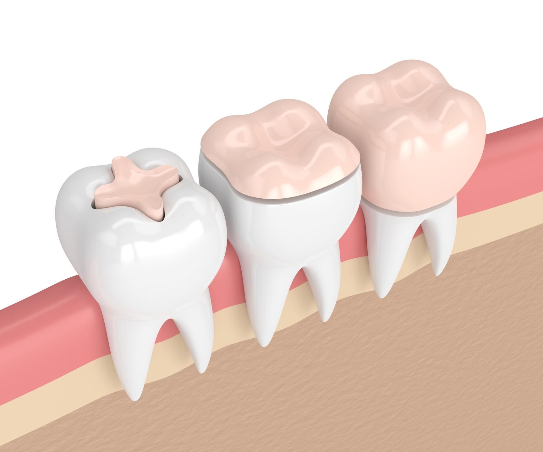 Ferber Dental Group (@ferberdental) Cover Image