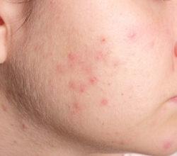 https://www.jambase.com (@dermatologybay) Cover Image