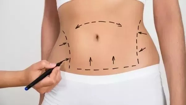 Downey Lipo enters (@downeylipocenters) Cover Image