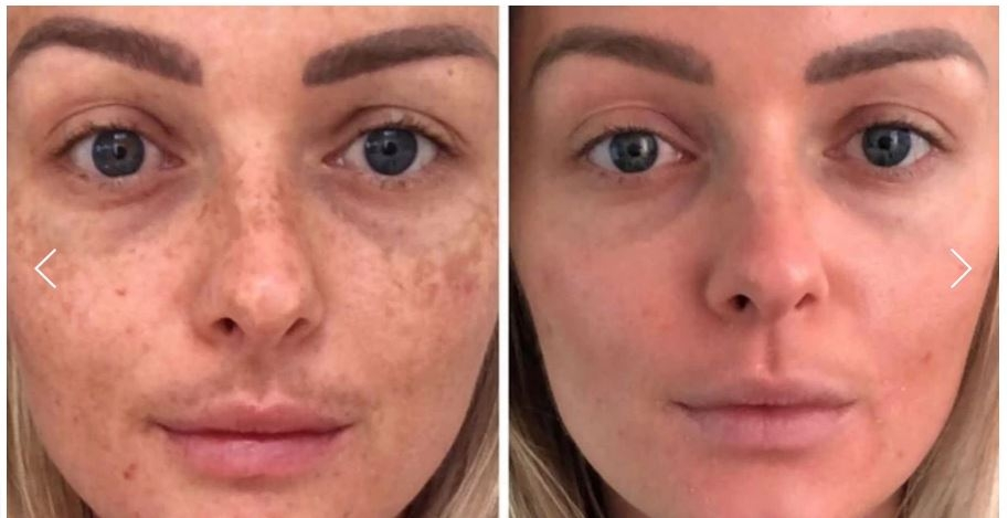 Skin Radiance Clinic (@skinradiancemelasmaclinic) Cover Image
