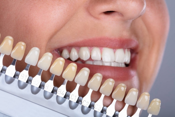 All On 4 Dental Implants (@dentistemergency) Cover Image